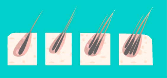 Resultado de imagen para microimplante capilar